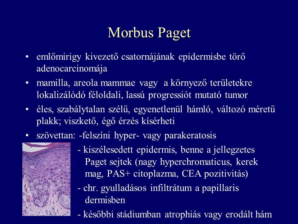 Morbus Paget emlőmirigy kivezető csatornájának epidermisbe törő adenocarcinomája.
