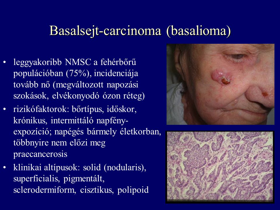 Basalsejt-carcinoma (basalioma)
