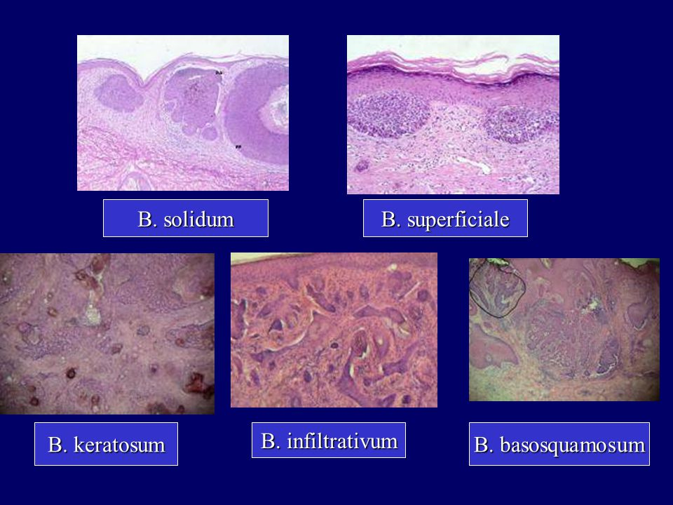 B. solidum B. superficiale B. keratosum B. infiltrativum B. basosquamosum