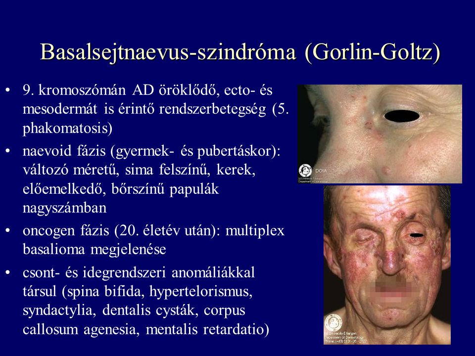 Basalsejtnaevus-szindróma (Gorlin-Goltz)