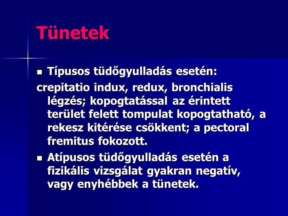 Tünetek Típusos tüdőgyulladás esetén: