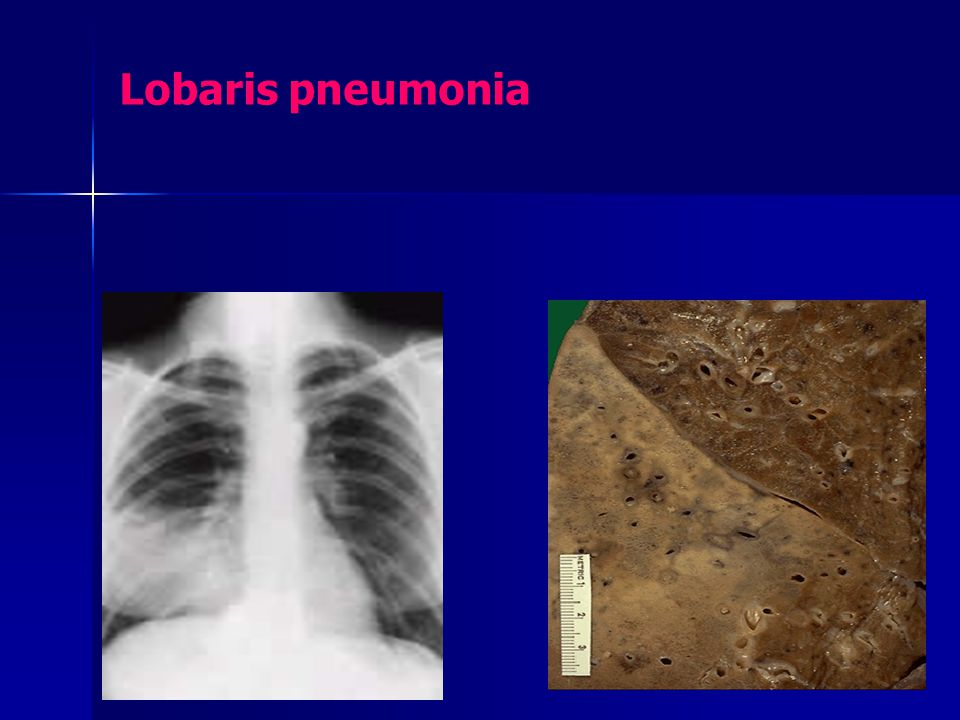 Lobaris pneumonia