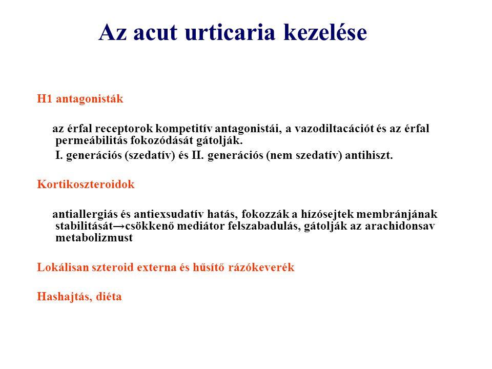 Az acut urticaria kezelése