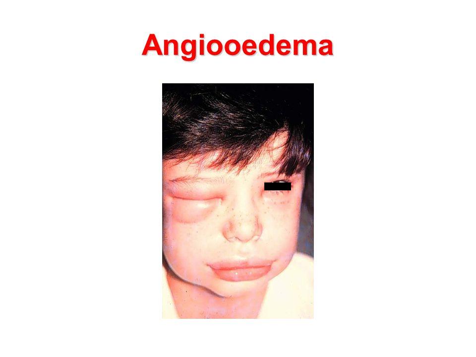 Angiooedema