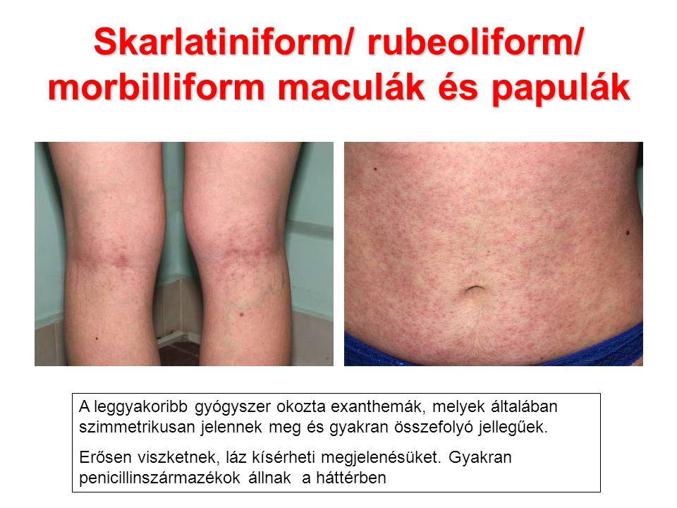 Skarlatiniform/ rubeoliform/ morbilliform maculák és papulák