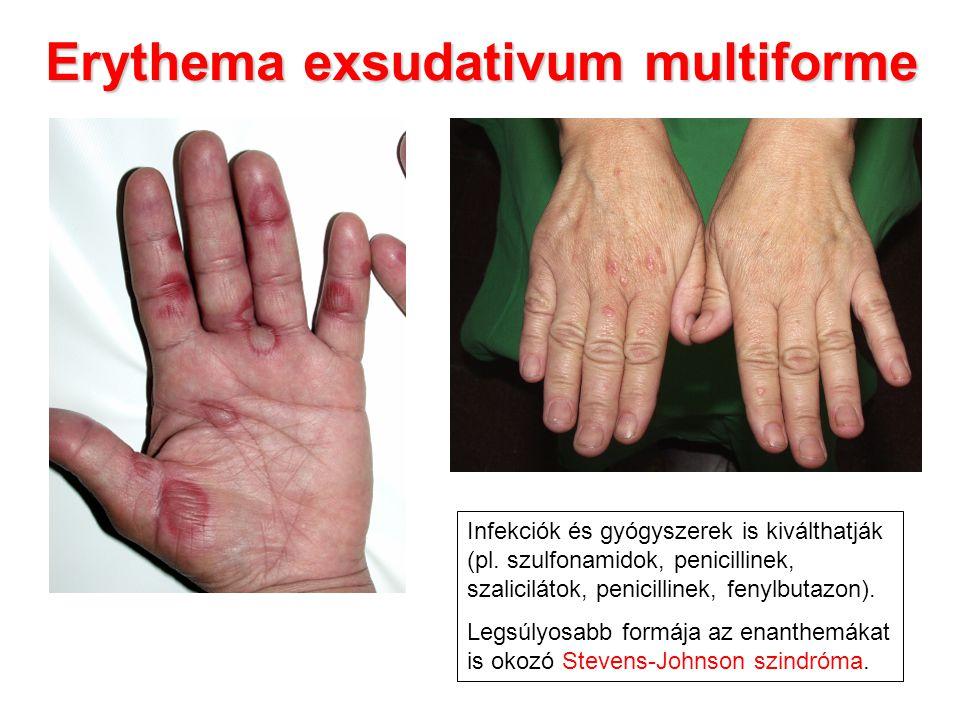 Erythema exsudativum multiforme