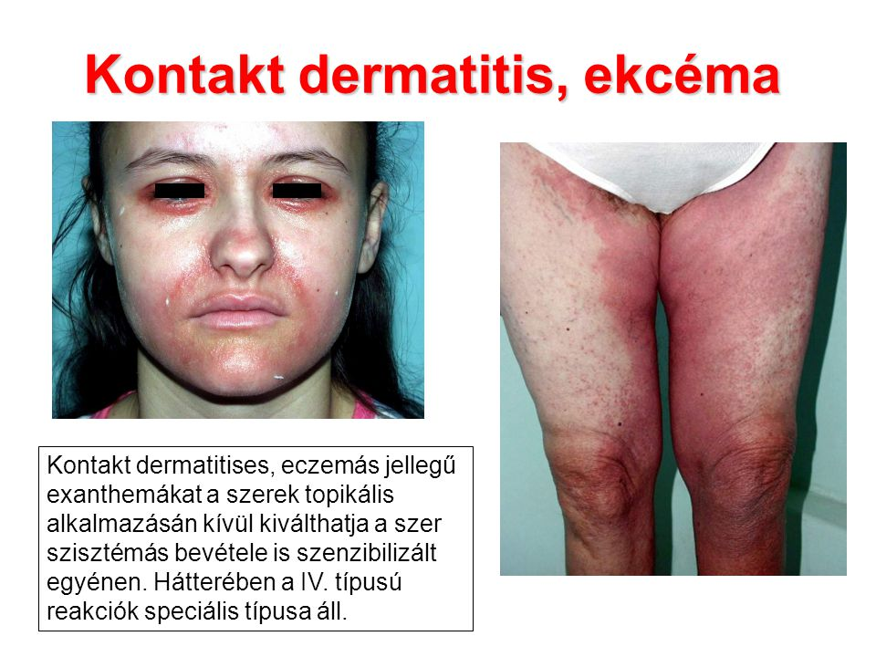 Kontakt dermatitis, ekcéma