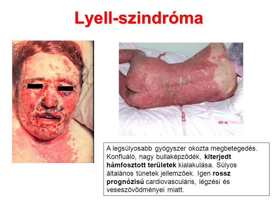 Lyell-szindróma