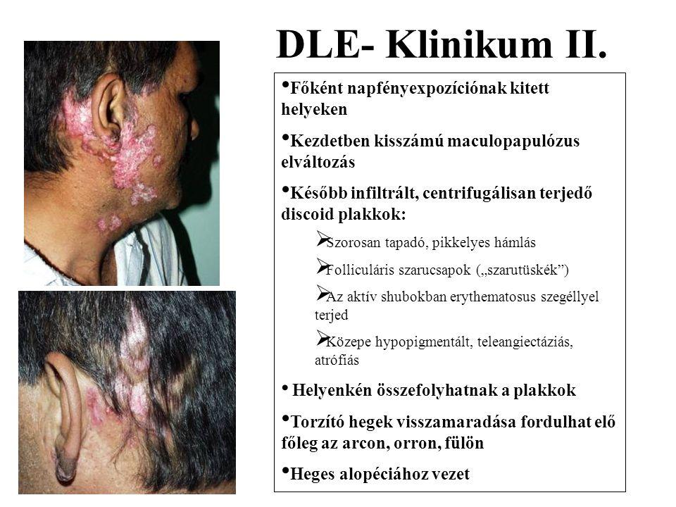 DLE- Klinikum II. Főként napfényexpozíciónak kitett helyeken