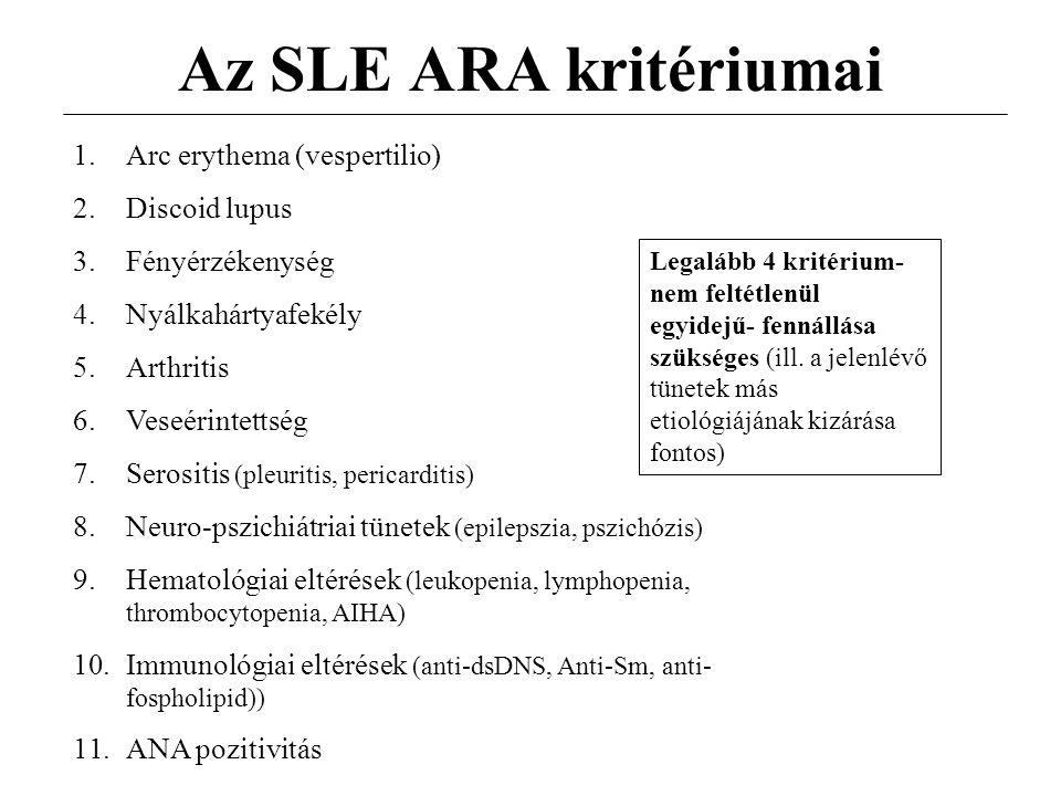 Az SLE ARA kritériumai Arc erythema (vespertilio) Discoid lupus