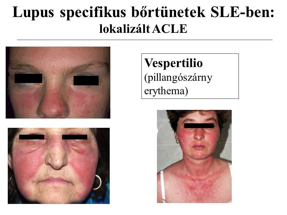 Lupus specifikus bőrtünetek SLE-ben: lokalizált ACLE