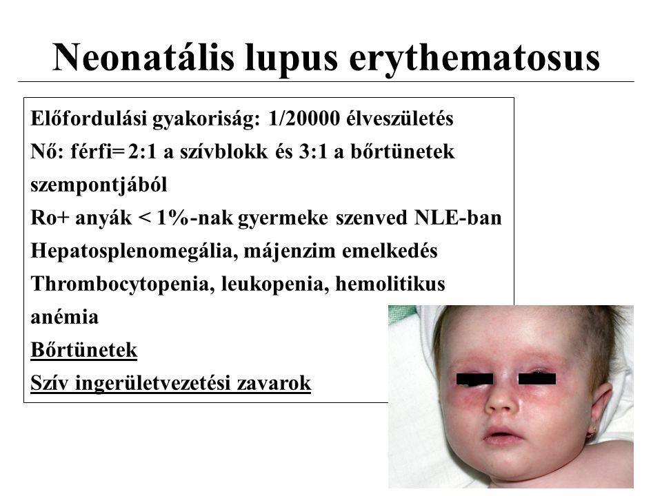 Neonatális lupus erythematosus