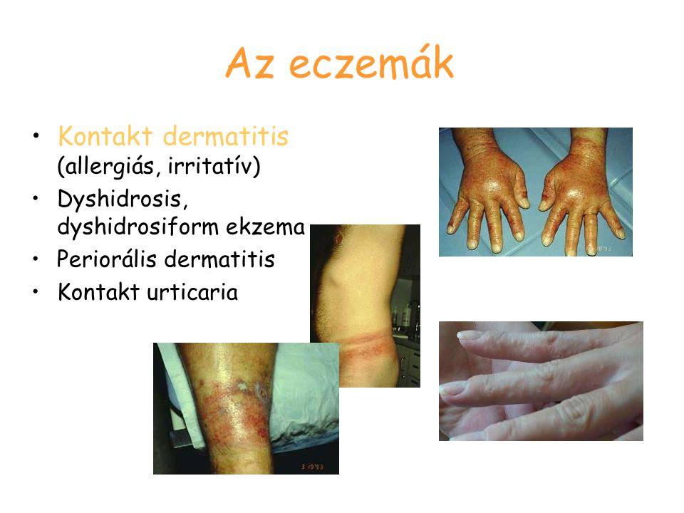 Az eczemák Kontakt dermatitis (allergiás, irritatív)
