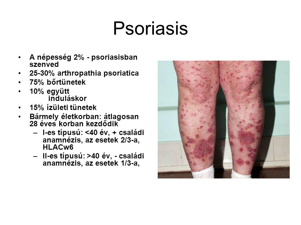 Psoriasis A népesség 2% - psoriasisban szenved