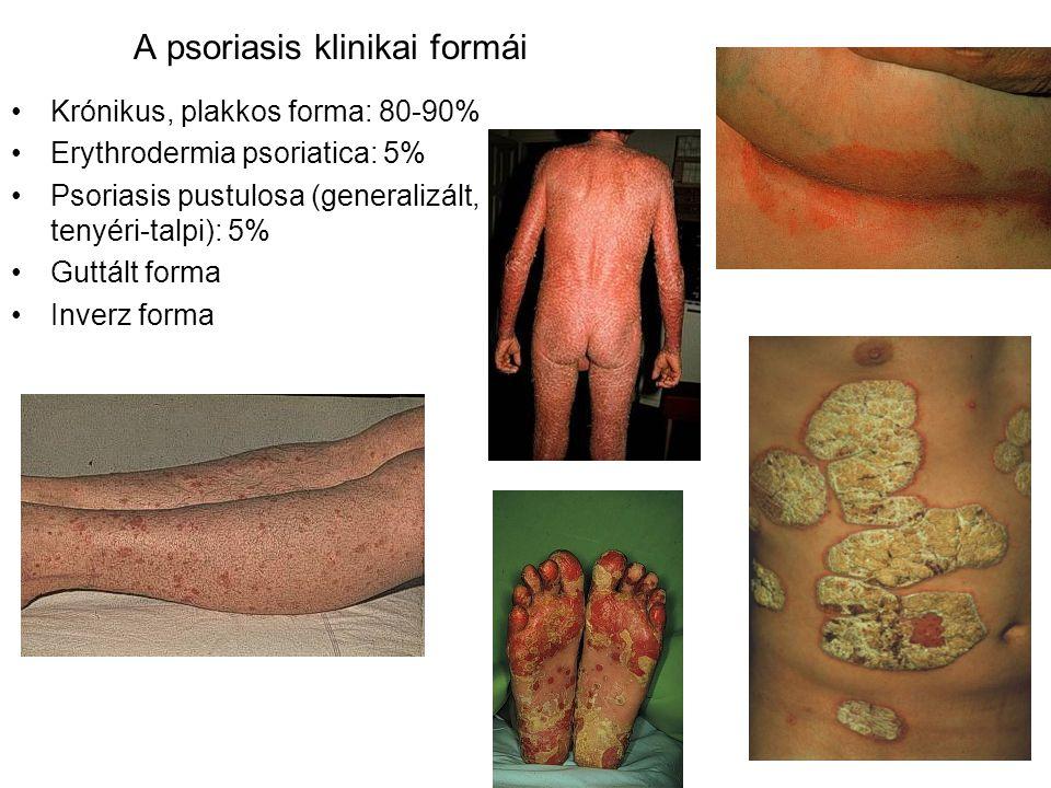 A psoriasis klinikai formái