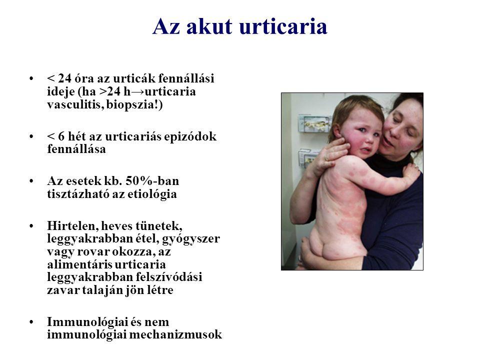 Az akut urticaria < 24 óra az urticák fennállási ideje (ha >24 h→urticaria vasculitis, biopszia!) < 6 hét az urticariás epizódok fennállása.