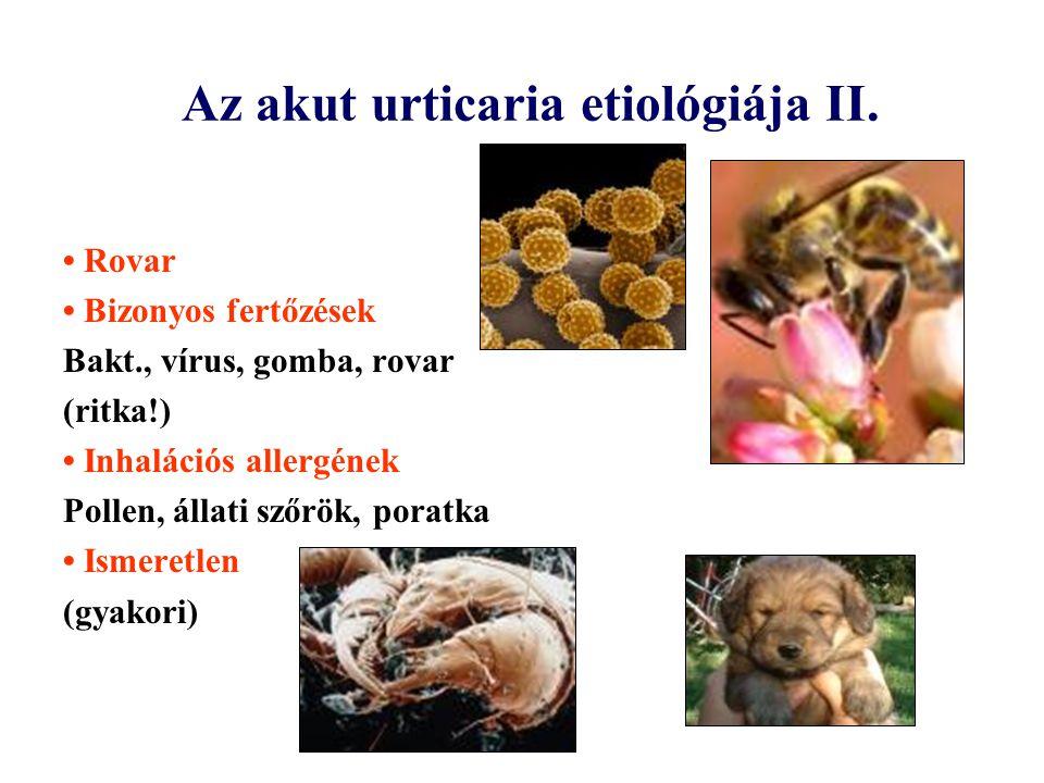 Az akut urticaria etiológiája II.