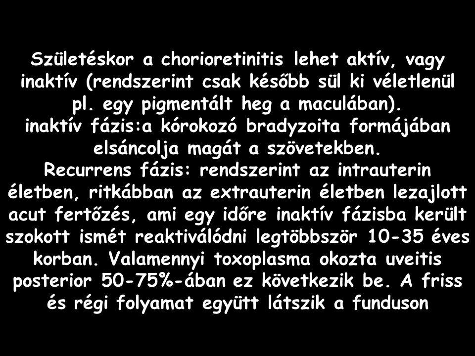 Az uveitisek korszerű diagnosztikája és terápiája 2006. 02. 16.