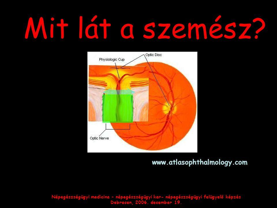 Mit lát a szemész www.atlasophthalmology.com