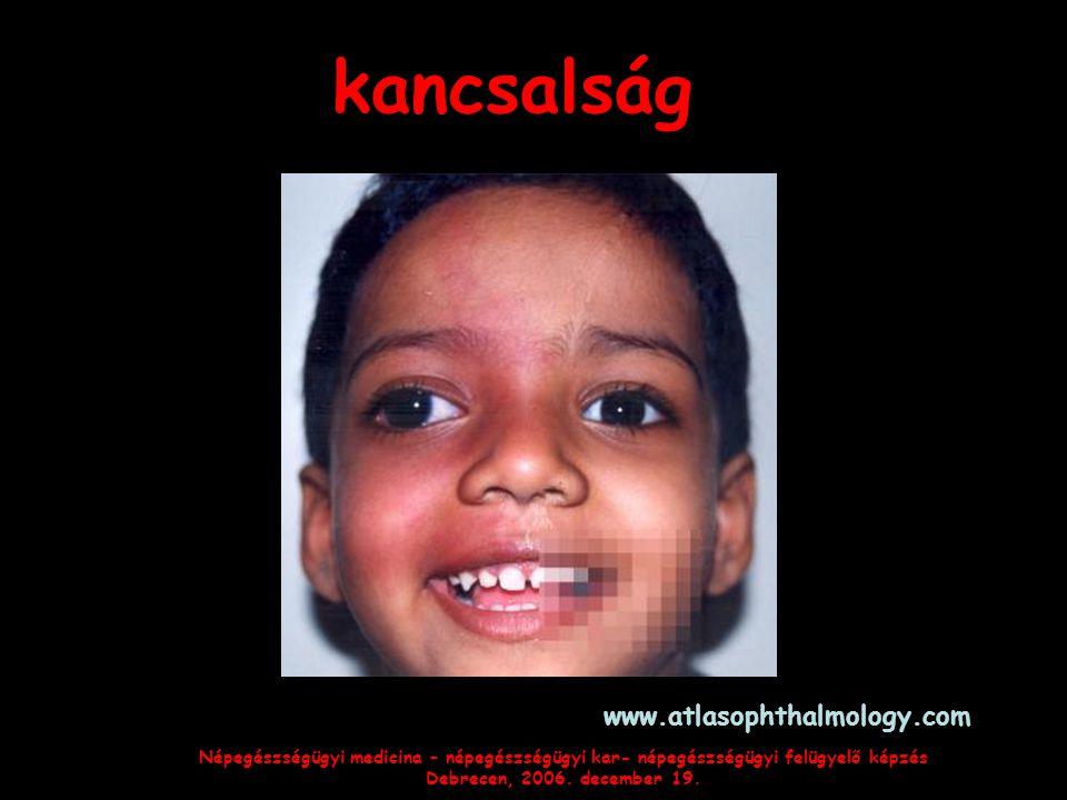 kancsalság www.atlasophthalmology.com