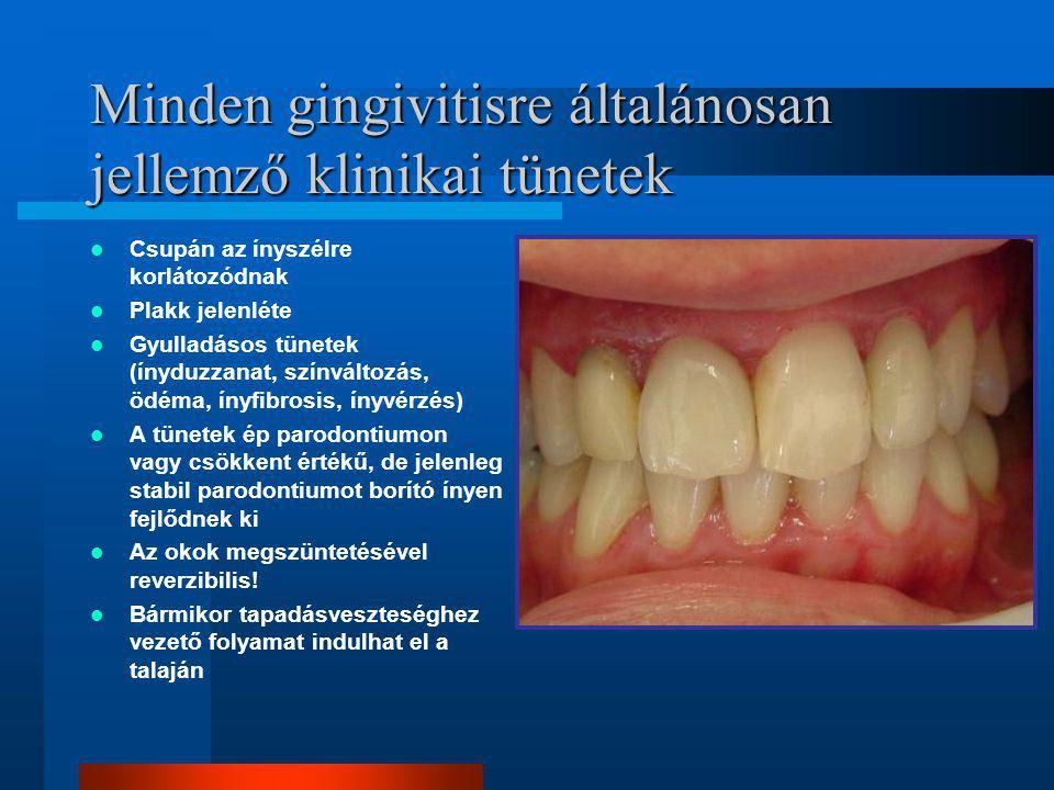 Minden gingivitisre általánosan jellemző klinikai tünetek