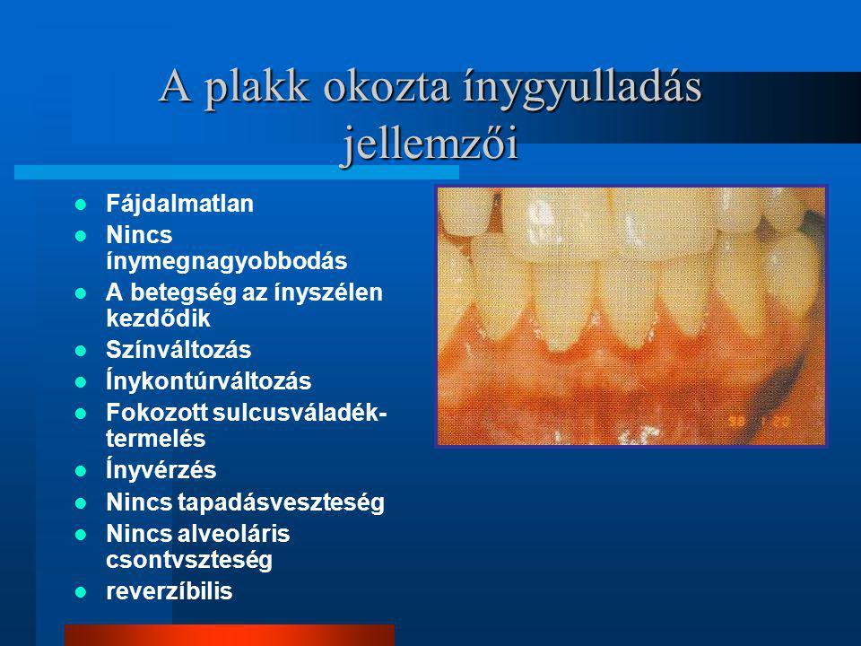 A plakk okozta ínygyulladás jellemzői