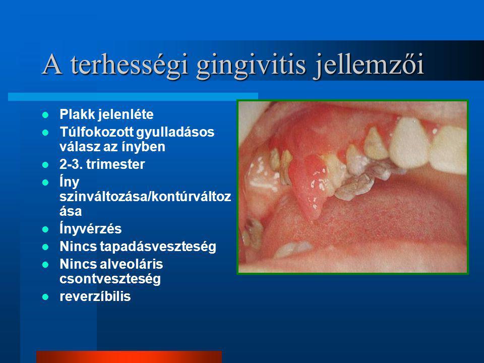 A terhességi gingivitis jellemzői