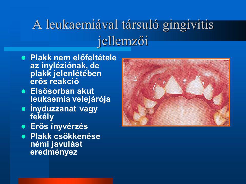 A leukaemiával társuló gingivitis jellemzői