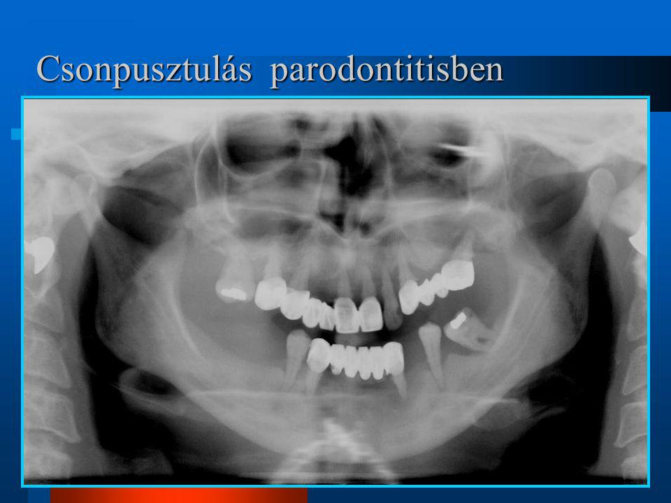 Csonpusztulás parodontitisben