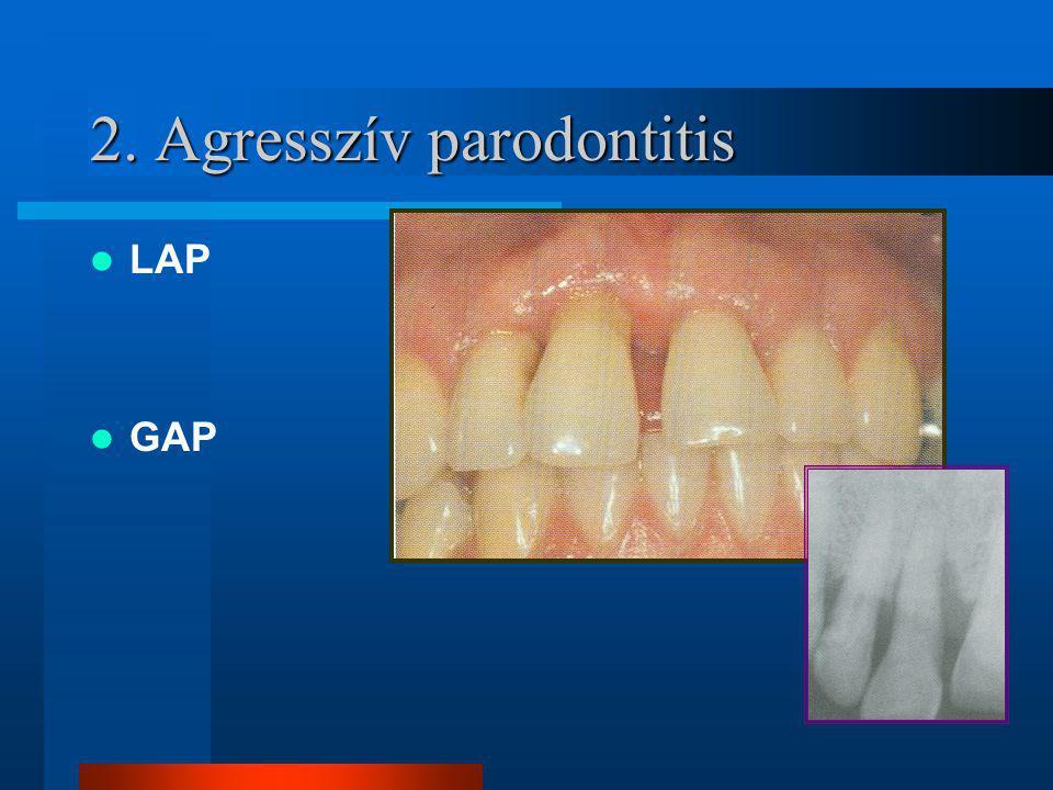 2. Agresszív parodontitis