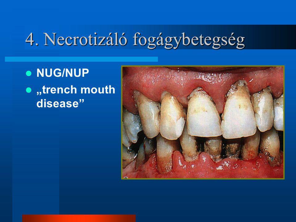 4. Necrotizáló fogágybetegség