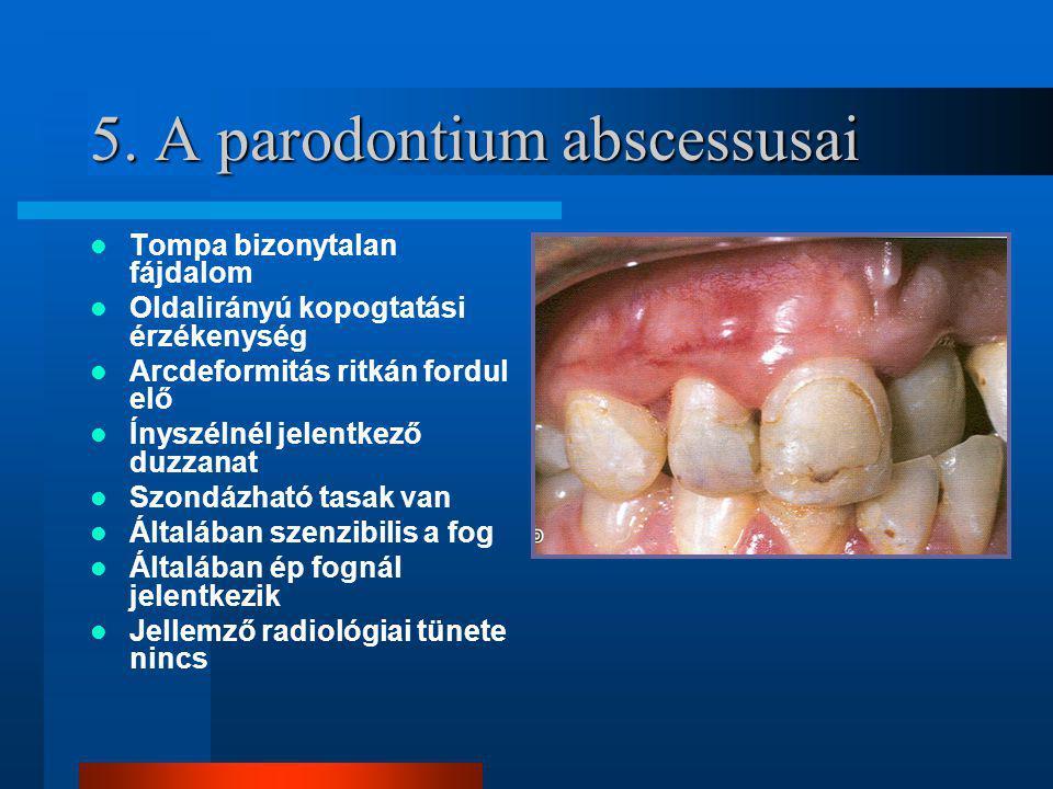 5. A parodontium abscessusai