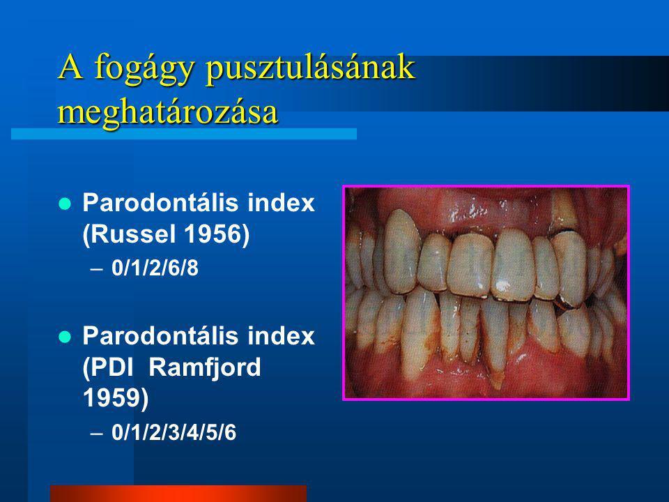 A fogágy pusztulásának meghatározása