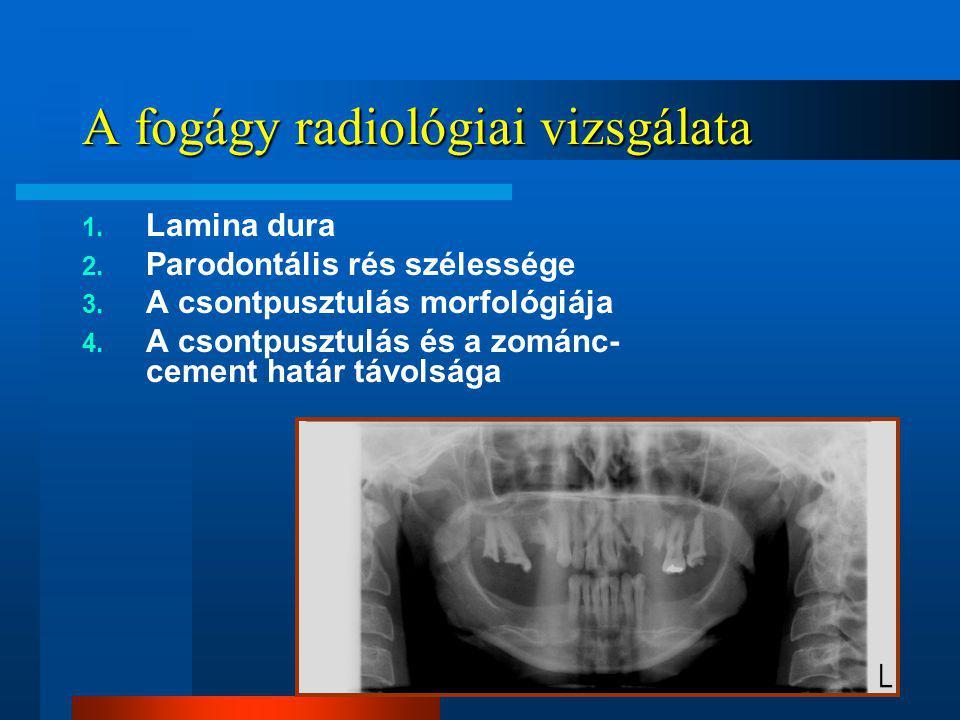 A fogágy radiológiai vizsgálata