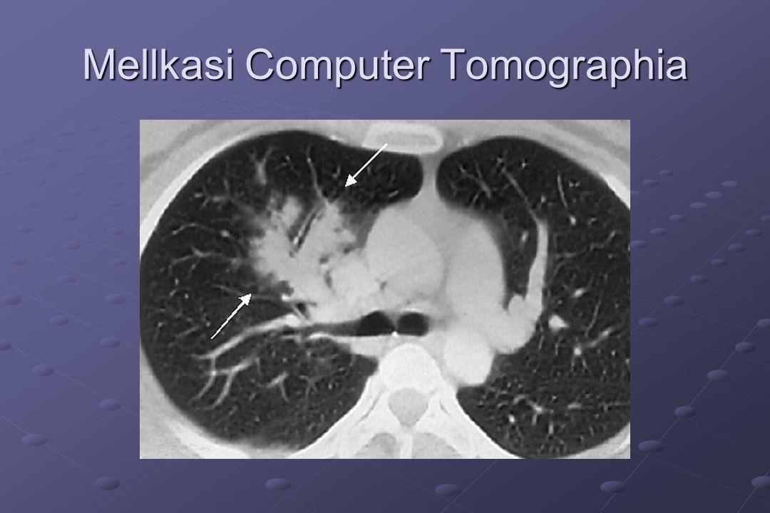 Mellkasi Computer Tomographia