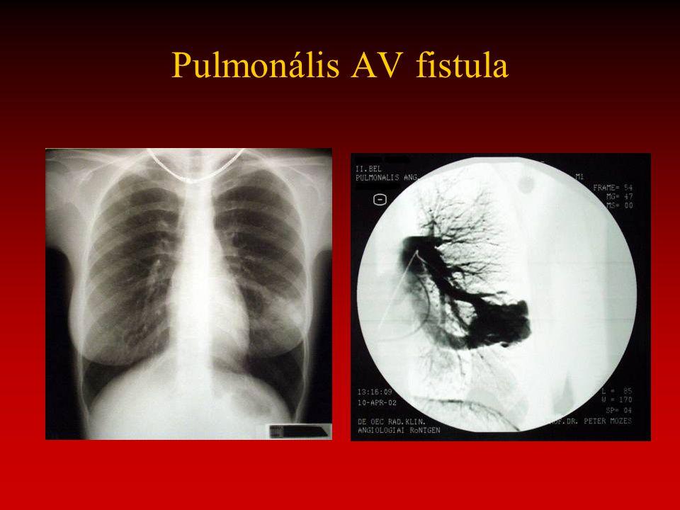 Pulmonális AV fistula