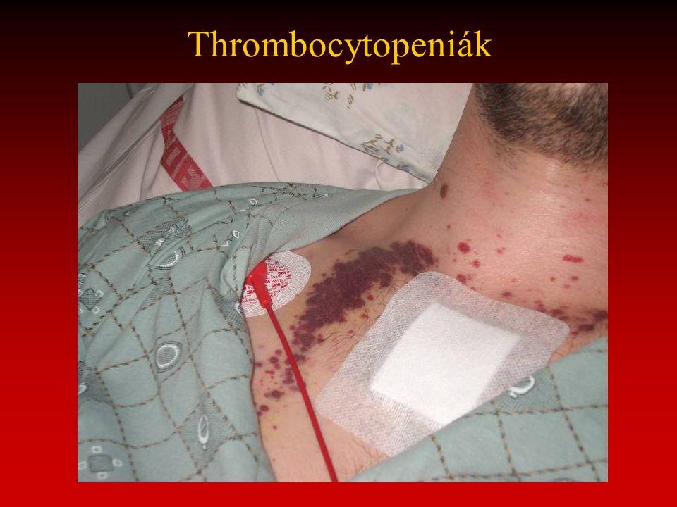 Thrombocytopeniák