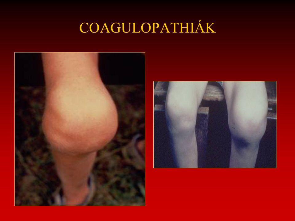 COAGULOPATHIÁK