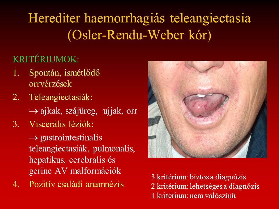 Herediter haemorrhagiás teleangiectasia (Osler-Rendu-Weber kór)