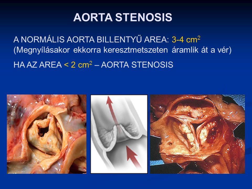 AORTA STENOSIS A NORMÁLIS AORTA BILLENTYŰ AREA: 3-4 cm2 (Megnyílásakor ekkorra keresztmetszeten áramlik át a vér)