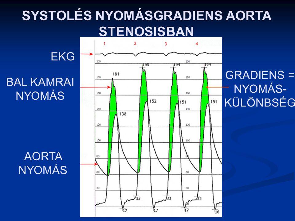SYSTOLÉS NYOMÁSGRADIENS AORTA STENOSISBAN