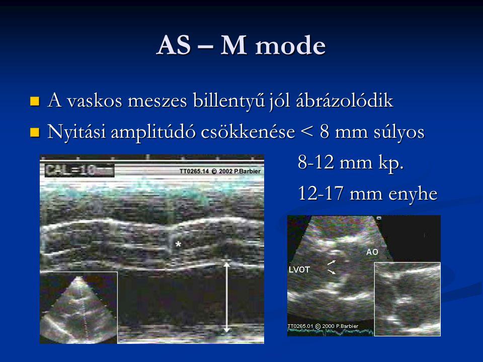 AS – M mode A vaskos meszes billentyű jól ábrázolódik