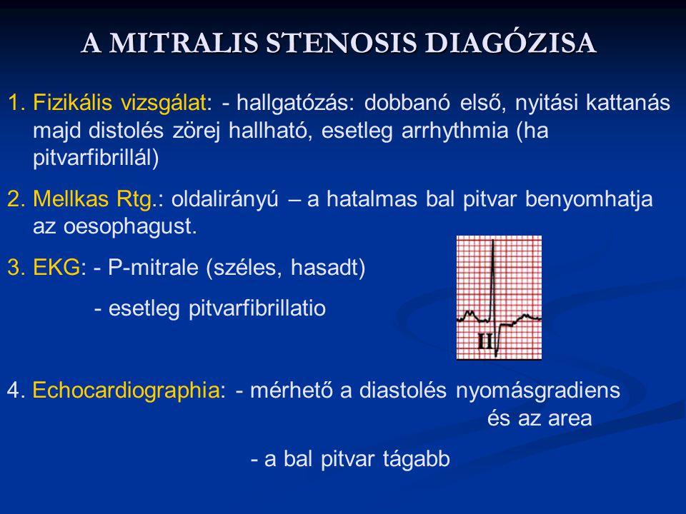 A MITRALIS STENOSIS DIAGÓZISA