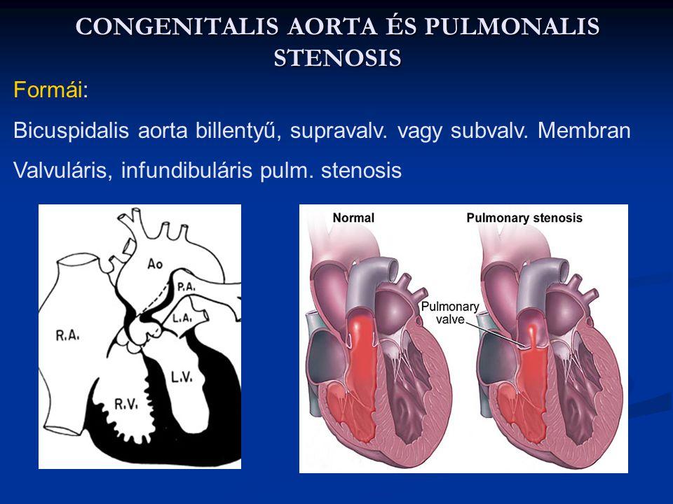 CONGENITALIS AORTA ÉS PULMONALIS STENOSIS