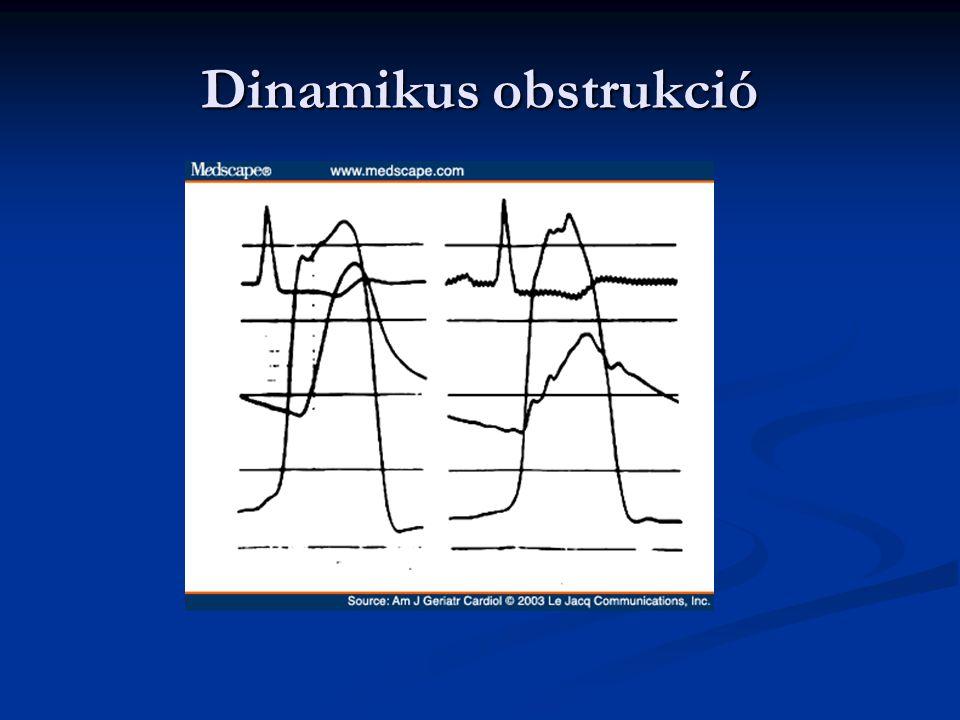 Dinamikus obstrukció