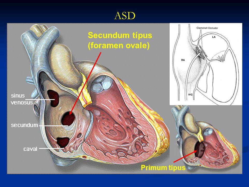 ASD Secundum típus (foramen ovale) Primum típus