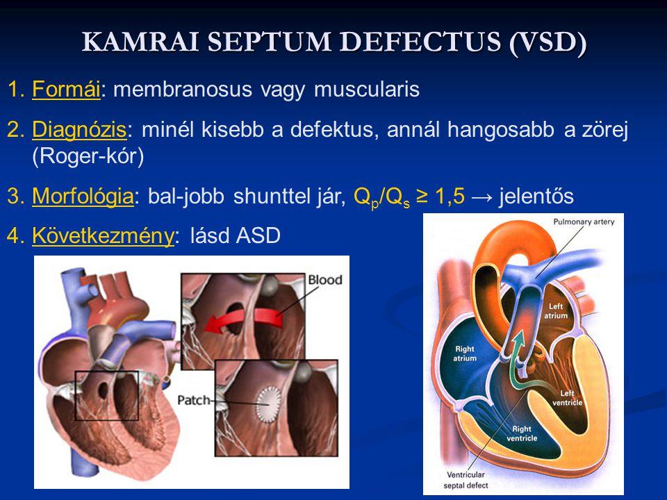 KAMRAI SEPTUM DEFECTUS (VSD)