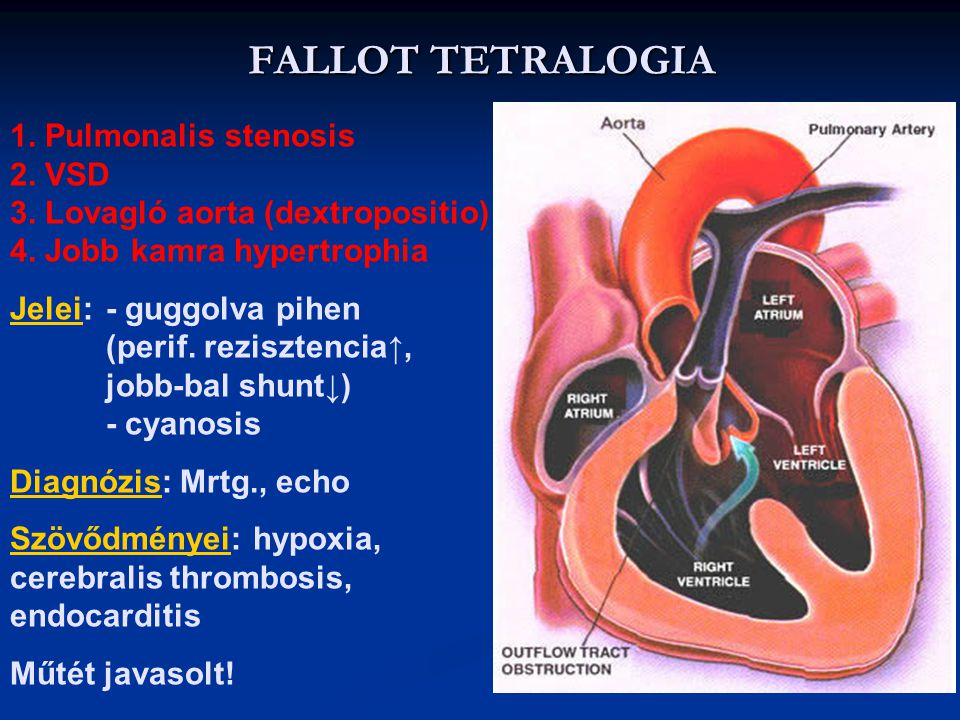FALLOT TETRALOGIA 1. Pulmonalis stenosis 2. VSD 3. Lovagló aorta (dextropositio) 4. Jobb kamra hypertrophia.