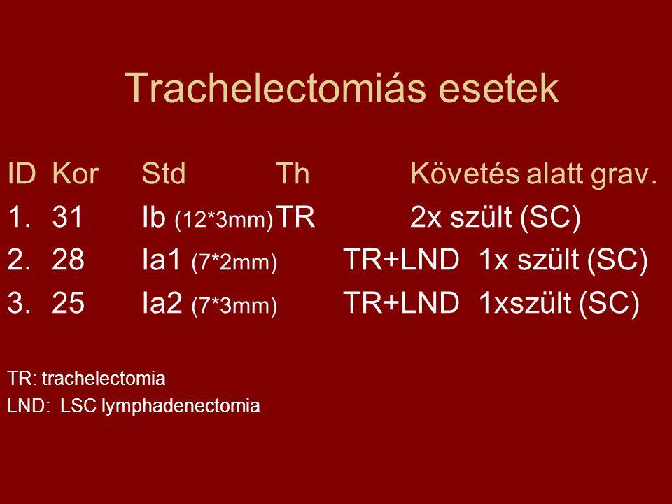 Trachelectomiás esetek