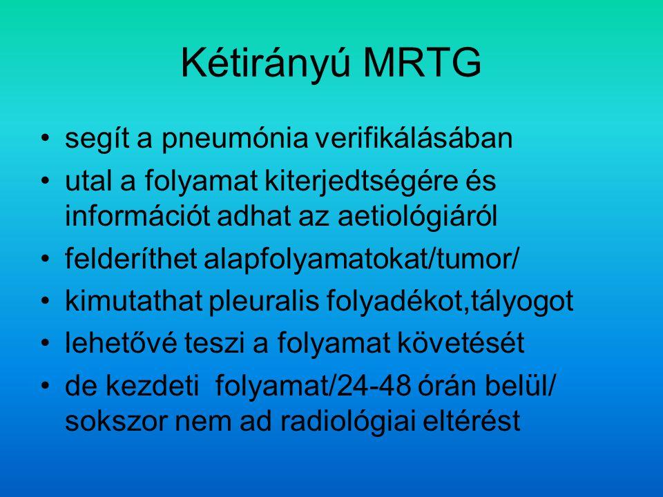 Kétirányú MRTG segít a pneumónia verifikálásában
